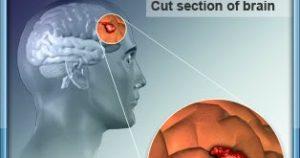 Gejala Tumor Otak Jinak - Education Articles