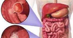 Kebiasaan Buruk Pemicu Kanker Usus ~ Tips Menyehatkan