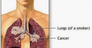 Pantangan Penderita Kanker Paru-Paru Yang Harus Dijauhi ~ Tips Menyehatkan