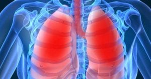 Radang Paru-Paru Atau Pneumonia ~ Tips Menyehatkan