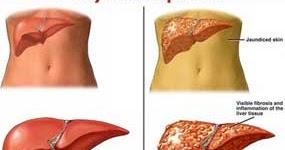 IlmuPengetahuanku.com: Pengertian Hepatitis