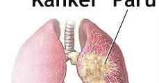 Pencegahan Kanker Paru (Lung Cancer Prevention)